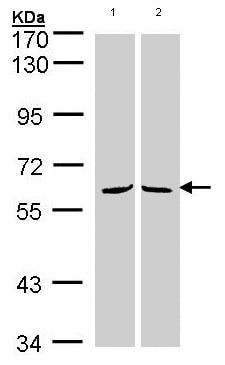 Western blot - MPP3 antibody (ab96234)