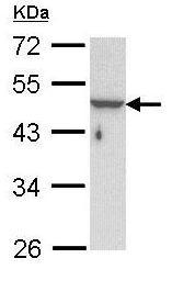 Western blot - KRTHA3B antibody (ab96238)