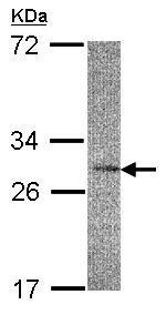 Western blot - IL22 RA2 antibody (ab96341)
