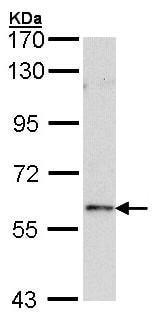 Western blot - FOXN1 antibody (ab96374)