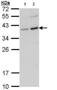 Western blot - CD272 antibody (ab96560)