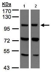 Western blot - VPS11 antibody (ab96561)
