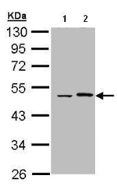 Western blot - Epoxide hydrolase antibody (ab96695)