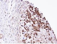Immunohistochemistry (Formalin/PFA-fixed paraffin-embedded sections) - Triosephosphate isomerase antibody (ab96696)