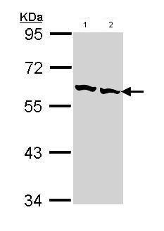 Western blot - TCP1 beta antibody (ab96701)
