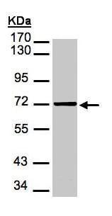 Western blot - Mesothelin antibody (ab96869)