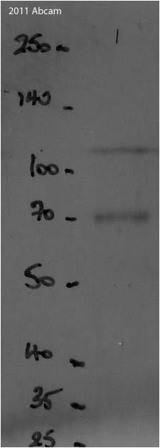 Western blot - Goat polyclonal Secondary Antibody to Chicken IgY - H&L (HRP) (ab97135)