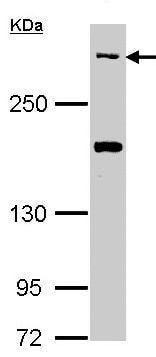 Western blot - CACNA1B (N type) antibody (ab97284)