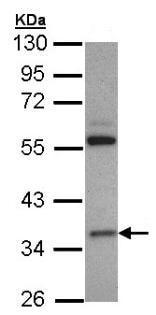 Western blot - HMGCL antibody (ab97293)