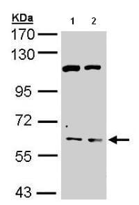 Western blot - Acetylcholinesterase antibody (ab97298)