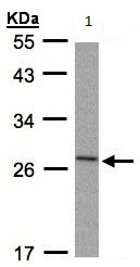 Western blot - Anti-IL1RA antibody (ab97301)