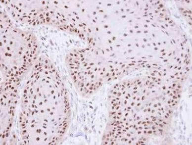 Immunohistochemistry (Formalin/PFA-fixed paraffin-embedded sections) - RPA70 antibody (ab97338)