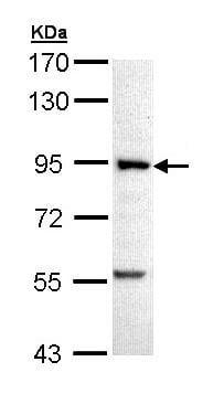Western blot - Fructose 6 Phosphate Kinase antibody (ab97353)