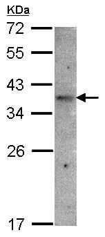 Western blot - GPR 164 antibody (ab97471)