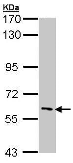 Western blot - IRAKM antibody (ab97518)