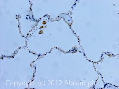 Immunohistochemistry (Formalin/PFA-fixed paraffin-embedded sections) - Anti-Angiotensin II Type 1 Receptor antibody (ab97571)