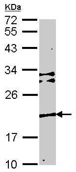 Western blot - TMEM147 antibody (ab97624)