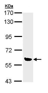 Western blot - OXSR1 antibody (ab97694)