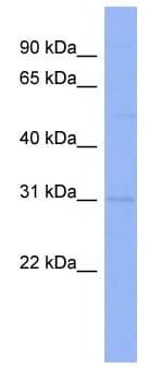 Western blot - Anti-Claudin18 antibody (ab98071)