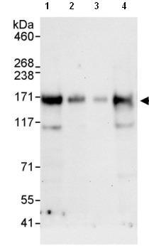 Western blot - Ataxin 2-like antibody (ab99304)