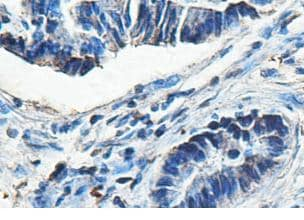 Immunohistochemistry (Formalin/PFA-fixed paraffin-embedded sections) - ACAD9 antibody (ab99952)