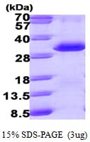 SDS-PAGE - PSME1 protein (ab99961)