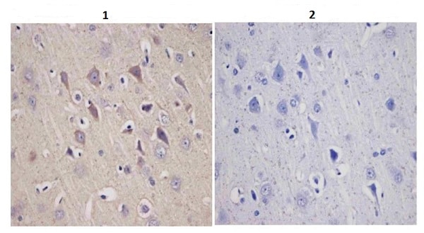 Immunohistochemistry (Formalin/PFA-fixed paraffin-embedded sections) - Anti-Tyrosine Hydroxylase antibody - Neuronal Marker (ab112)