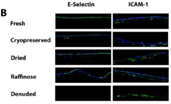 Immunohistochemistry (Frozen sections) - Anti-ICAM1 antibody [15.2] (ab20)