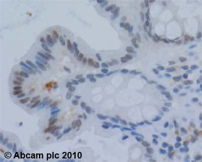 Immunohistochemistry (Formalin/PFA-fixed paraffin-embedded sections) - Anti-Werner's syndrome helicase WRN antibody (ab200)