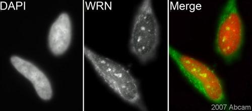 Immunocytochemistry/ Immunofluorescence - Anti-Werner's syndrome helicase WRN antibody (ab200)