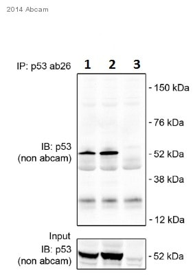 Immunoprecipitation - Anti-p53 antibody [PAb 240] (ab26)