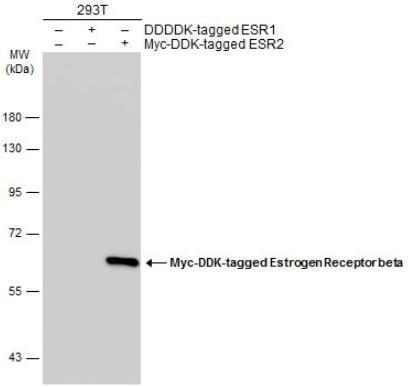 Western blot - Anti-Estrogen Receptor beta antibody [14C8] (ab288)