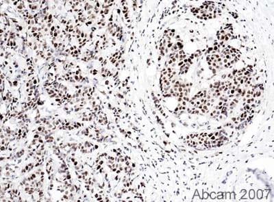 Immunohistochemistry (Formalin/PFA-fixed paraffin-embedded sections) - Anti-PCNA antibody [PC10] (ab29)