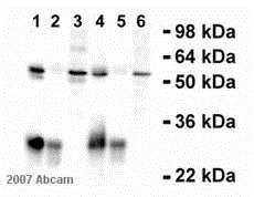 Immunoprecipitation - Anti-Cyclin A2 antibody [E23.1] (ab38)