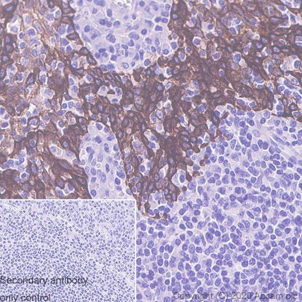 Immunohistochemistry (Formalin/PFA-fixed paraffin-embedded sections) - Anti-Cytokeratin 5 + 6 + 18 antibody [LP34] (ab40)