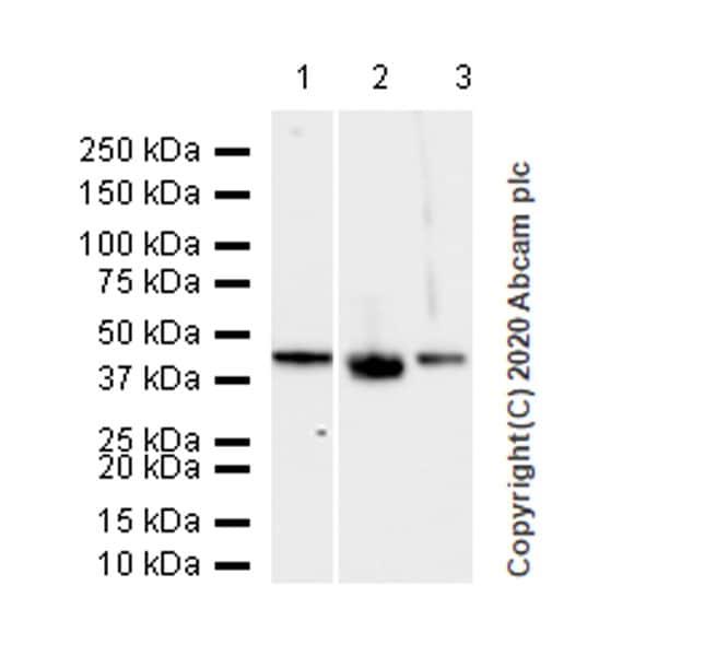 Western blot - Anti-Cytokeratin 5 + 6 + 18 antibody [LP34] (ab40)