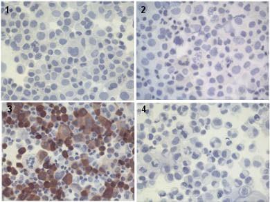 Immunocytochemistry - Anti-FOXP3 antibody [mAbcam 450] (ab450)