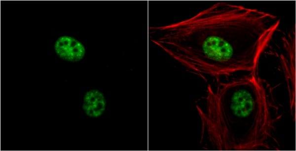 Immunocytochemistry/ Immunofluorescence - Anti-Nuclear Matrix Protein p84 antibody [5E10] (ab487)