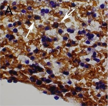 Immunohistochemistry (Formalin/PFA-fixed paraffin-embedded sections) - Anti-beta Galactosidase antibody (ab616)