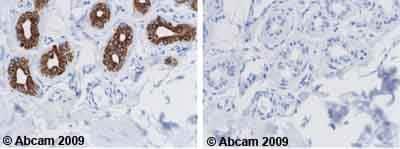Immunohistochemistry (Formalin/PFA-fixed paraffin-embedded sections) - Anti-Cytokeratin 18 antibody [DA-7] (ab669)