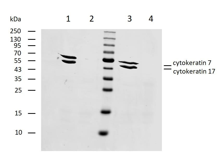 Western blot - Anti-Cytokeratin 7+17 antibody [C-46] (ab670)