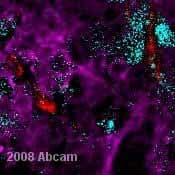Immunohistochemistry (Formalin/PFA-fixed paraffin-embedded sections) - Anti-Melanoma antibody [HMB45 + M2-7C10 + M2-9E3] (ab732)