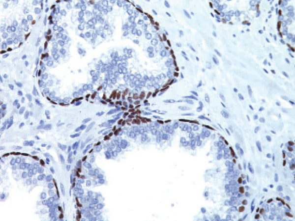Immunohistochemistry (Formalin/PFA-fixed paraffin-embedded sections) - Anti-p63 antibody [4A4] (ab735)