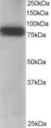 Western blot - Anti-MTA1 antibody (ab751)
