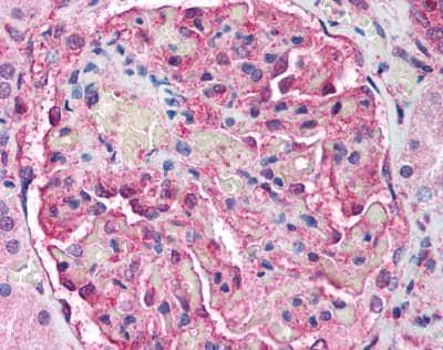 Immunohistochemistry (Formalin/PFA-fixed paraffin-embedded sections) - Anti-ATM antibody [2C1 (1A1)] (ab78)