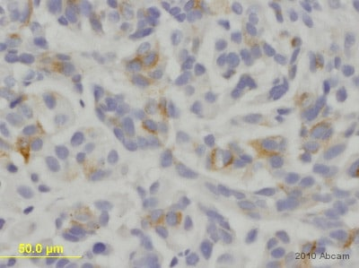 Immunohistochemistry (Formalin/PFA-fixed paraffin-embedded sections) - Anti-Melanoma gp100 antibody [HMB45] (ab787)