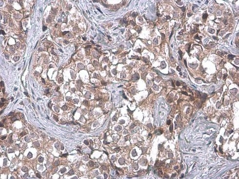 Immunohistochemistry (Formalin/PFA-fixed paraffin-embedded sections) - Anti-TSG101 antibody [4A10] (ab83)