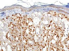 Immunohistochemistry (Formalin/PFA-fixed paraffin-embedded sections) - Anti-Ki67 antibody (ab833)