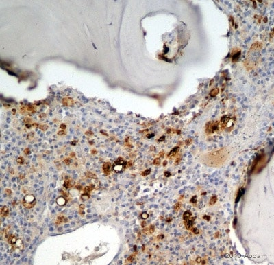 Immunohistochemistry (Formalin/PFA-fixed paraffin-embedded sections) - Anti-CD68 antibody [KP1] (ab955)