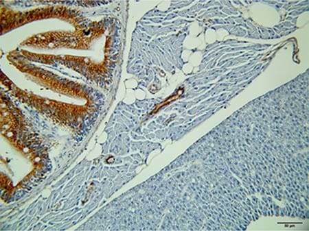 Immunohistochemistry (Formalin/PFA-fixed paraffin-embedded sections) - Anti-pan Cytokeratin antibody [AE1+AE3], prediluted (ab961)